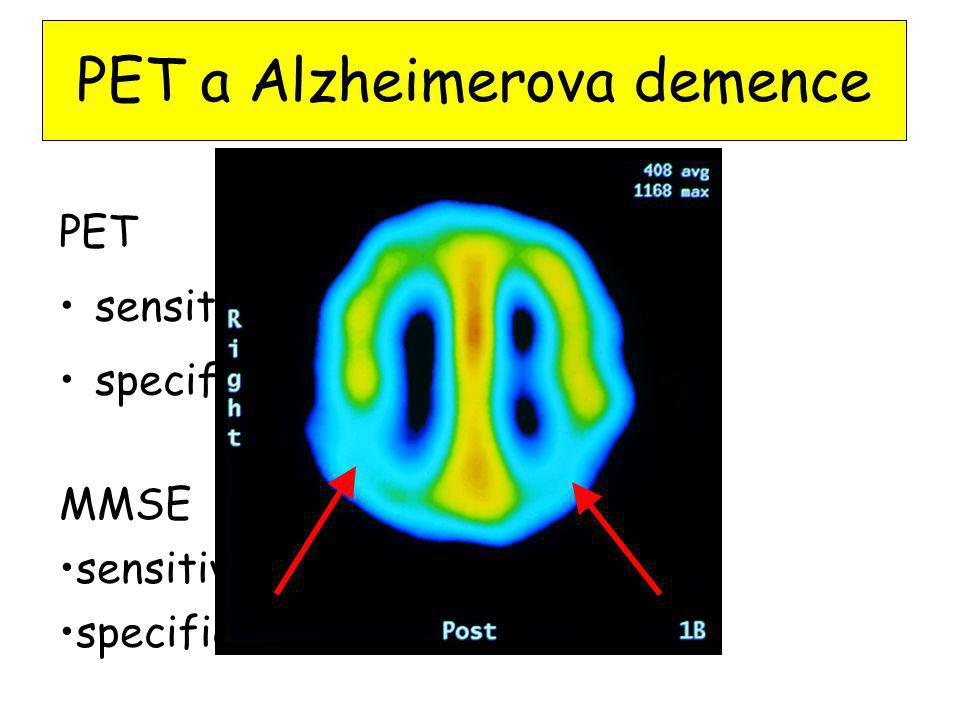 PET a Alzheimerova demence PET sensitivita 88% specificita 87% MMSE sensitivita 87% specificita 82%