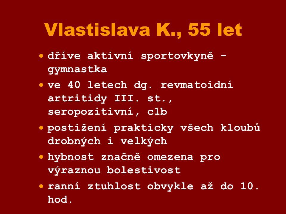 Vlastislava K., 55 let  dříve aktivní sportovkyně - gymnastka  ve 40 letech dg. revmatoidní artritidy III. st., seropozitivní, c1b  postižení prakt