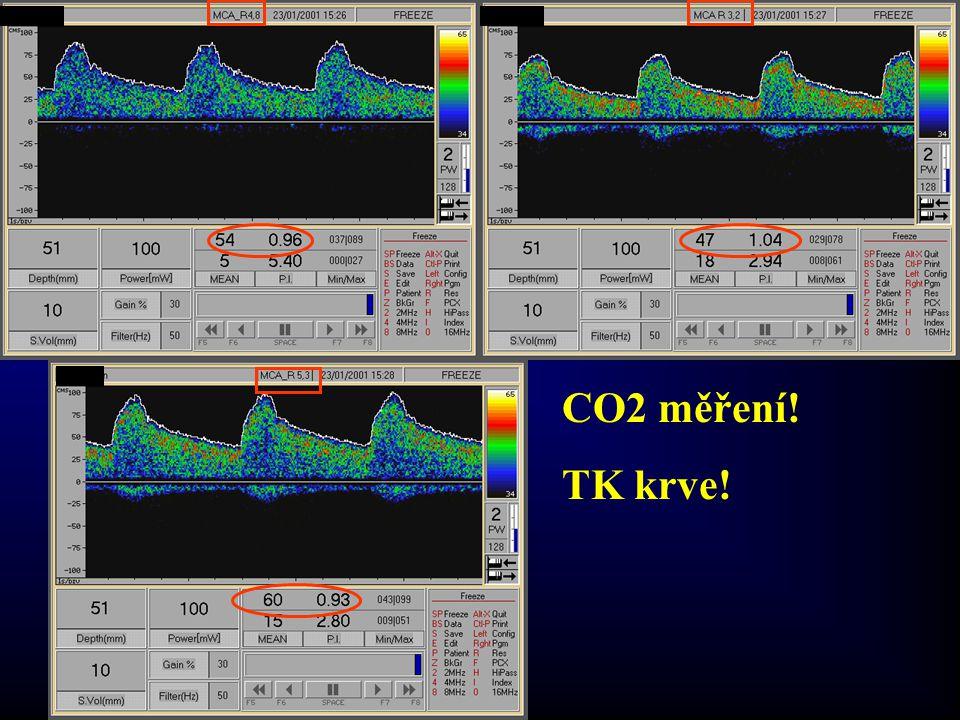 ICA chronic occlusion CO2 měření! TK krve!