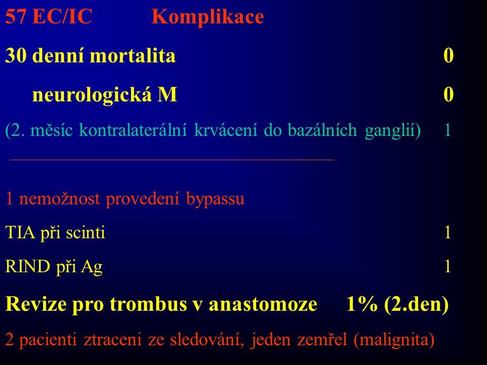 57 EC/ICKomplikace 30 denní mortalita0 neurologická M0 (2. měsíc kontralaterální krvácení do bazálních ganglií)1 1 nemožnost provedení bypassu TIA při