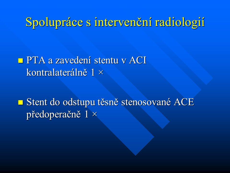 Spolupráce s intervenční radiologií PTA a zavedení stentu v ACI kontralaterálně 1 × PTA a zavedení stentu v ACI kontralaterálně 1 × Stent do odstupu t