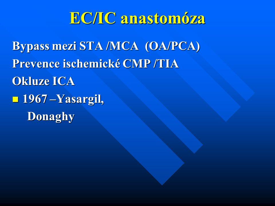 EC/IC anastomóza Bypass mezi STA /MCA (OA/PCA) Prevence ischemické CMP /TIA Okluze ICA 1967 –Yasargil, 1967 –Yasargil, Donaghy Donaghy