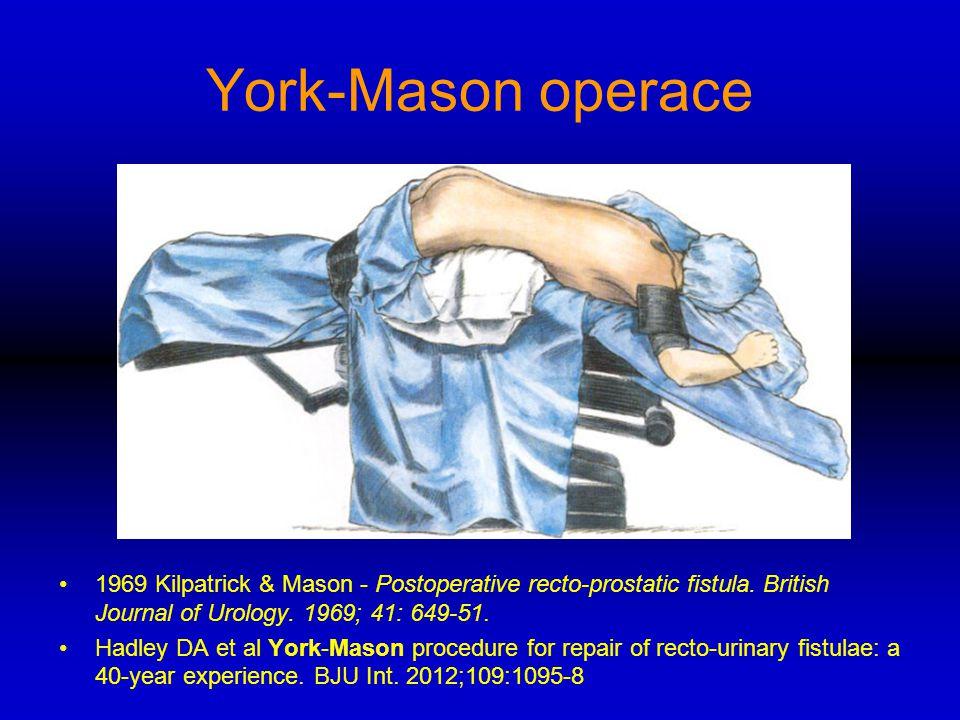 York-Mason operace 1969 Kilpatrick & Mason - Postoperative recto-prostatic fistula. British Journal of Urology. 1969; 41: 649-51. Hadley DA et al York