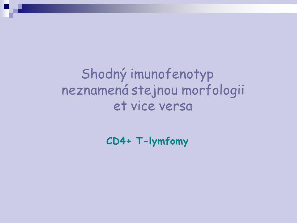 Shodný imunofenotyp neznamená stejnou morfologii et vice versa CD4+ T-lymfomy
