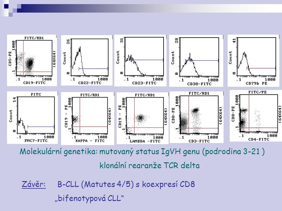 """Molekulární genetika: mutovaný status IgVH genu (podrodina 3-21 ) klonální rearanže TCR delta Závěr: B-CLL (Matutes 4/5) s koexpresí CD8 """"bifenotypová"""