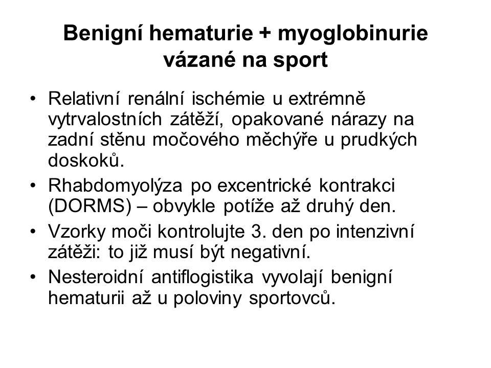 Benigní hematurie + myoglobinurie vázané na sport Relativní renální ischémie u extrémně vytrvalostních zátěží, opakované nárazy na zadní stěnu močovéh