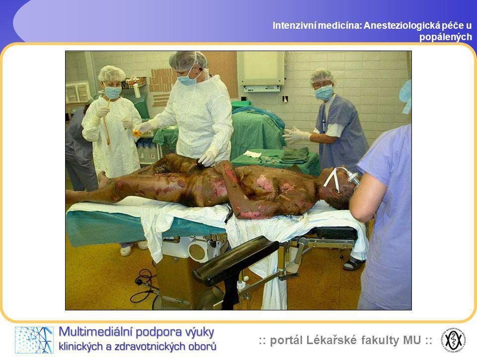 :: portál Lékařské fakulty MU :: Intenzivní medicína: Anesteziologická péče u popálených