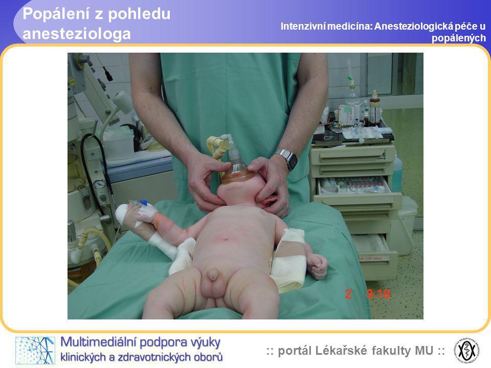 :: portál Lékařské fakulty MU :: Popálení z pohledu anesteziologa Intenzivní medicína: Anesteziologická péče u popálených