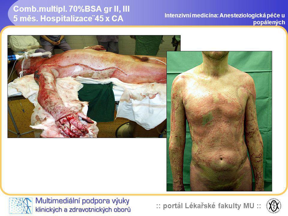 :: portál Lékařské fakulty MU :: Comb.multipl. 70%BSA gr II, III 5 měs. Hospitalizace¨45 x CA Intenzivní medicína: Anesteziologická péče u popálených