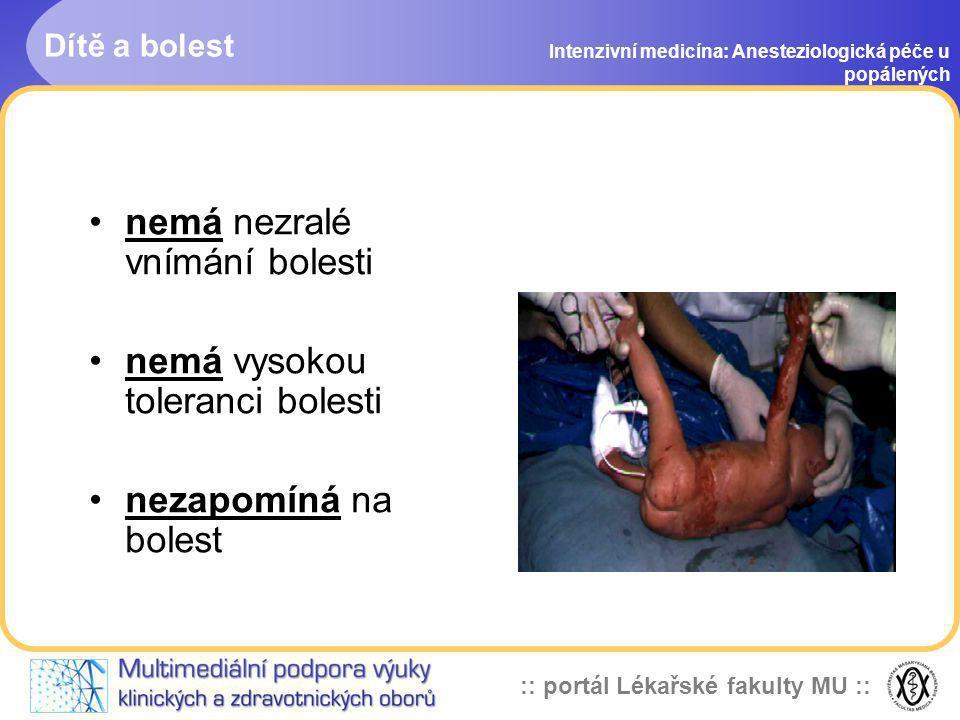:: portál Lékařské fakulty MU :: Dítě a bolest Intenzivní medicína: Anesteziologická péče u popálených nemá nezralé vnímání bolesti nemá vysokou toler