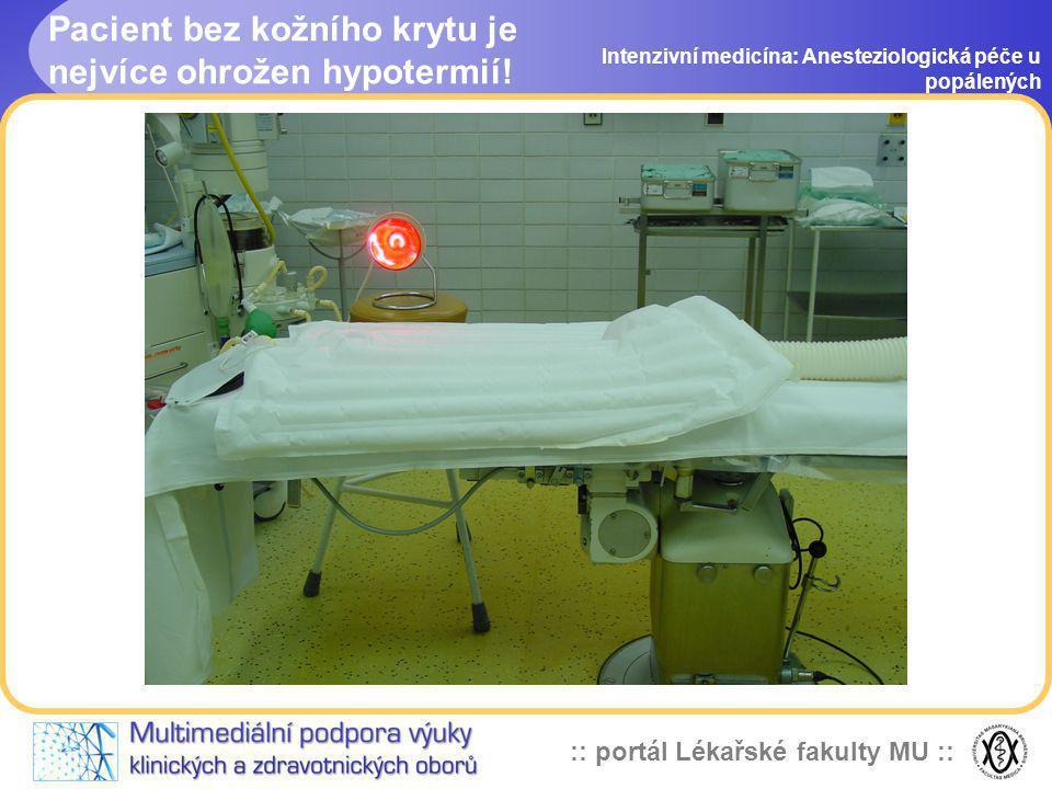 :: portál Lékařské fakulty MU :: Pacient bez kožního krytu je nejvíce ohrožen hypotermií! Intenzivní medicína: Anesteziologická péče u popálených