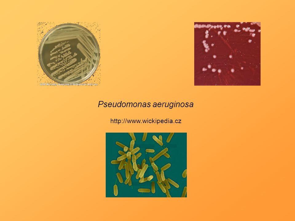 Pseudomonas aeruginosa http://www.wickipedia.cz