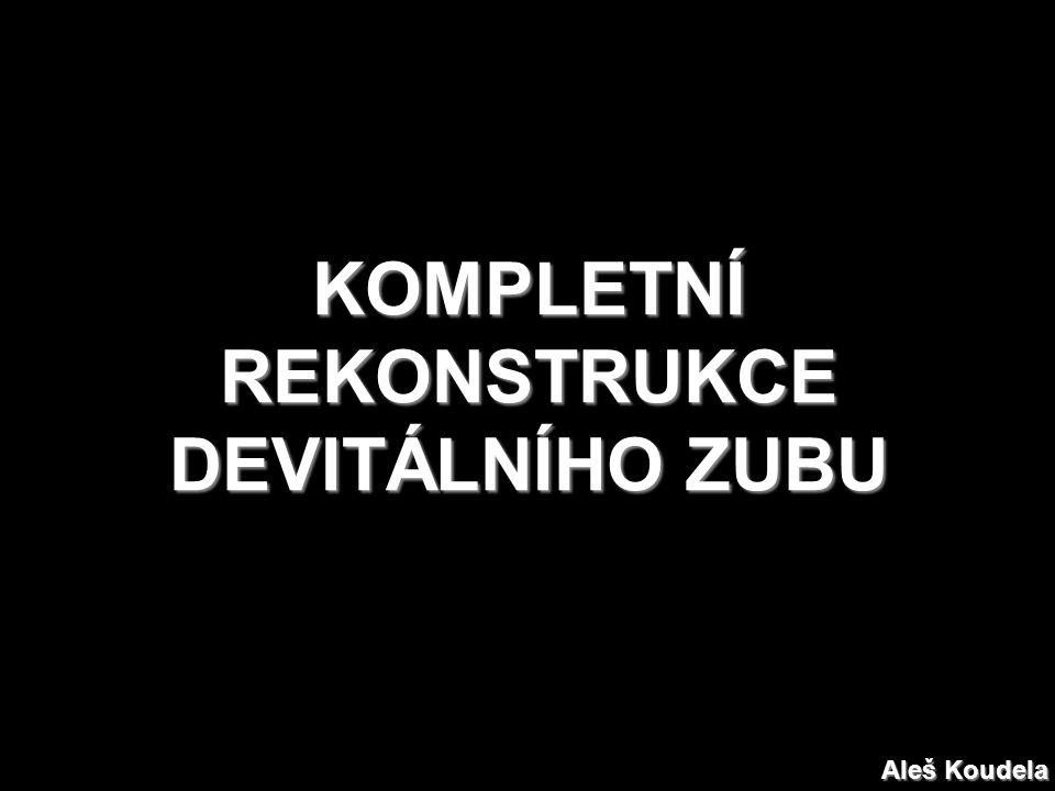 KOMPLETNÍ REKONSTRUKCE DEVITÁLNÍHO ZUBU Aleš Koudela