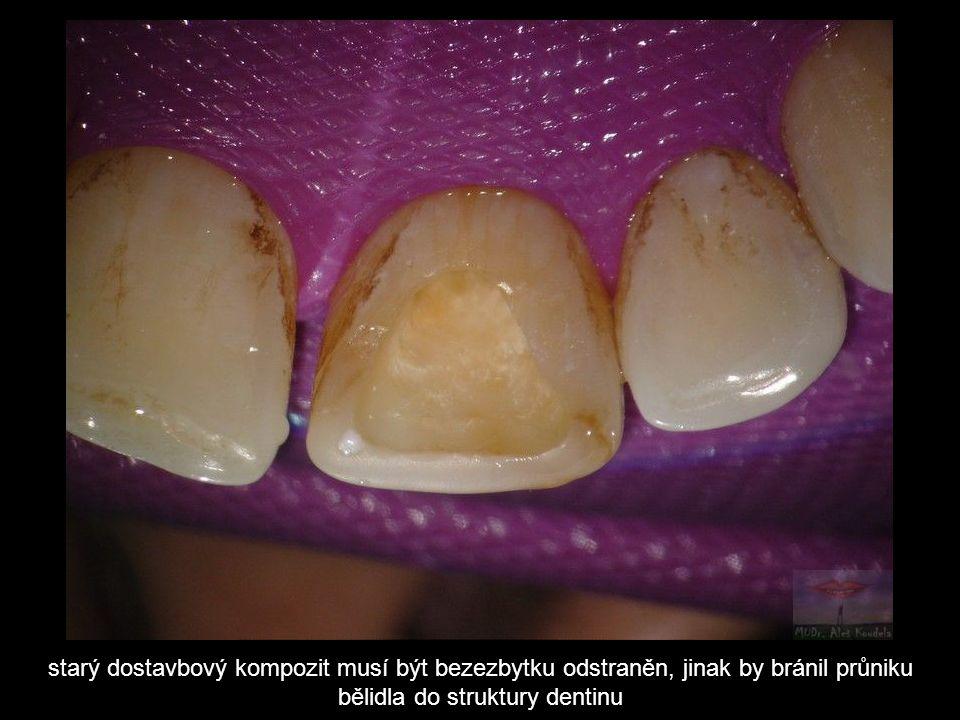 starý dostavbový kompozit musí být bezezbytku odstraněn, jinak by bránil průniku bělidla do struktury dentinu