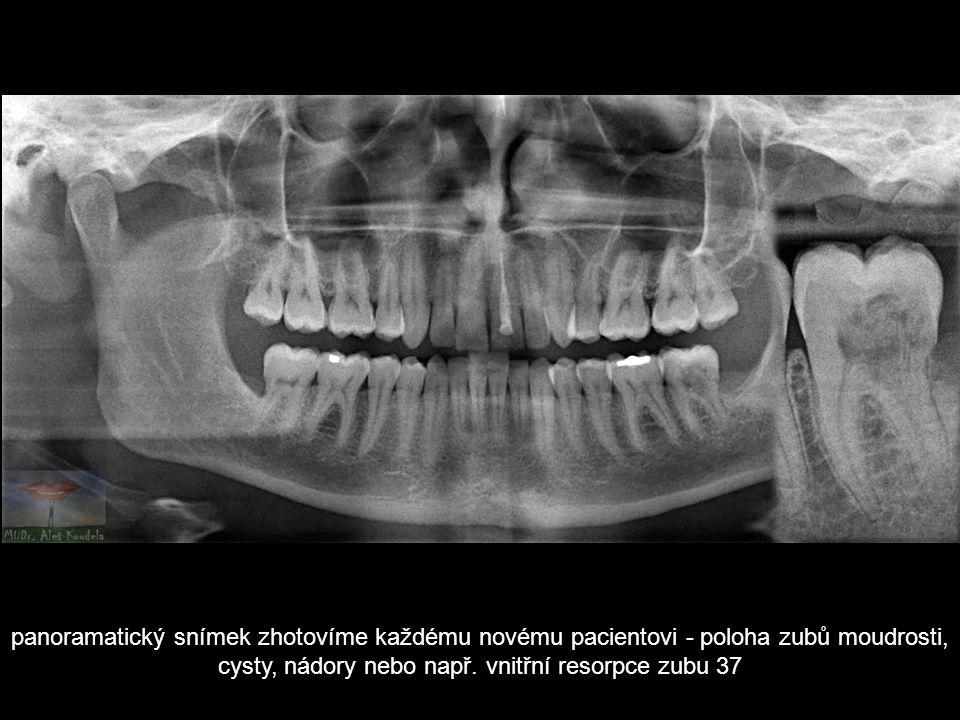 panoramatický snímek zhotovíme každému novému pacientovi - poloha zubů moudrosti, cysty, nádory nebo např. vnitřní resorpce zubu 37