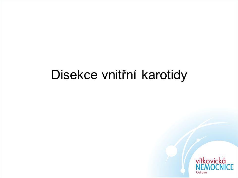 Disekce vnitřní karotidy
