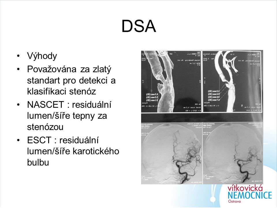 DSA Výhody Považována za zlatý standart pro detekci a klasifikaci stenóz NASCET : residuální lumen/šíře tepny za stenózou ESCT : residuální lumen/šíře