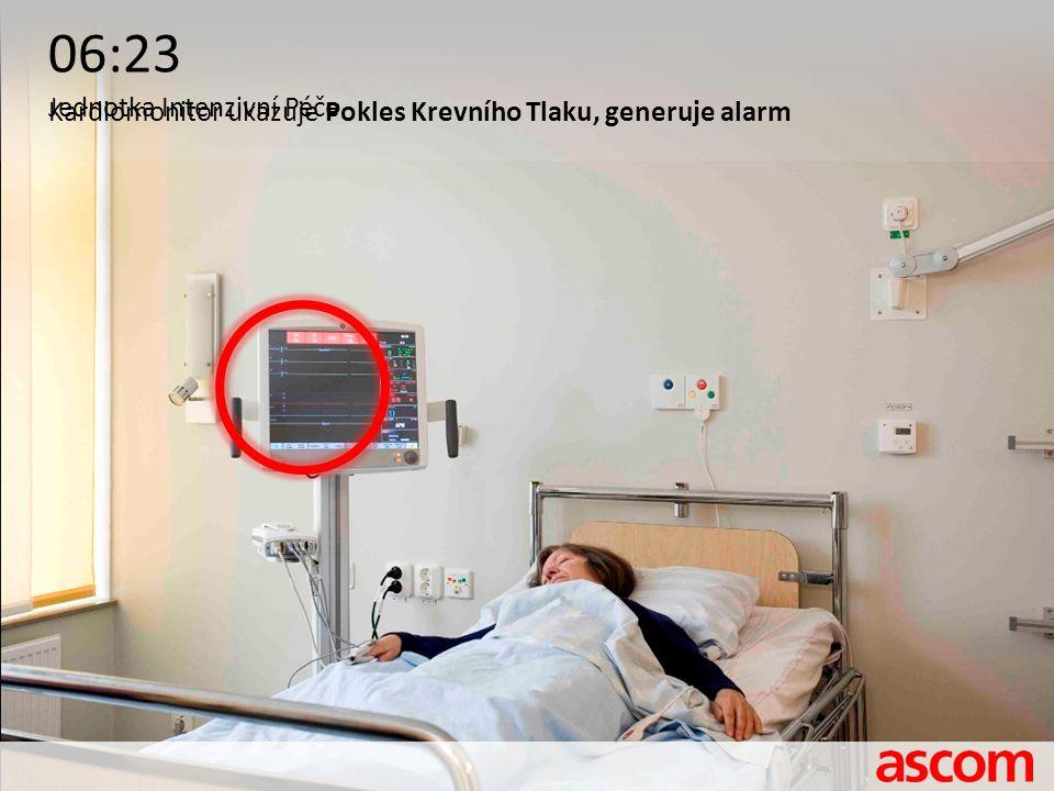 06:23 Jednotka Intenzivní Péče Kardiomonitor ukazuje Pokles Krevního Tlaku, generuje alarm