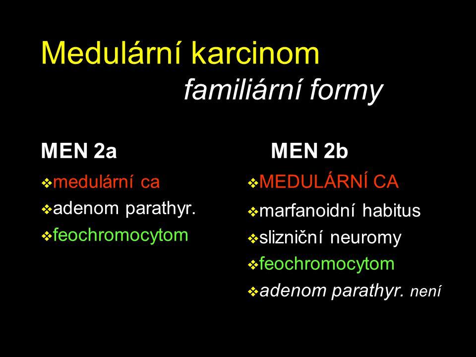 Medulární karcinom familiární formy MEN 2a  medulární ca  adenom parathyr.  feochromocytom MEN 2b  MEDULÁRNÍ CA  marfanoidní habitus  slizniční