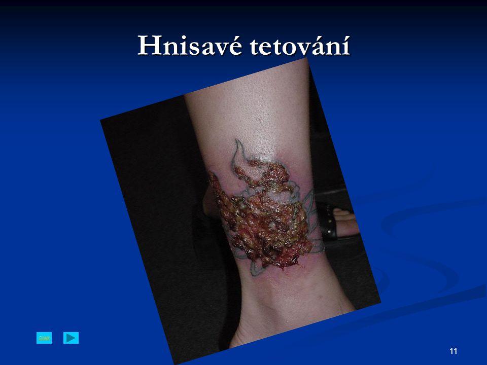 Obsah 11 Hnisavé tetování