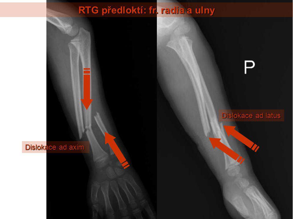 RTG předloktí: fr. radia a ulny Dislokace ad axim Dislokace ad latus