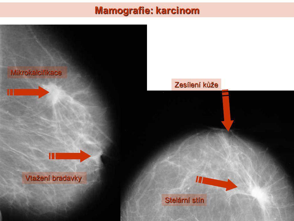 Mamografie: karcinom Mikrokalcifikace Stelární stín Vtažení bradavky Zesílení kůže
