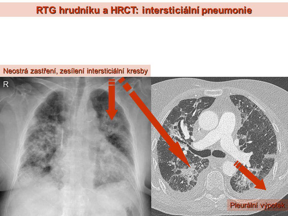 RTG hrudníku a HRCT: intersticiální pneumonie Neostrá zastření, zesílení intersticiální kresby Pleurální výpotek