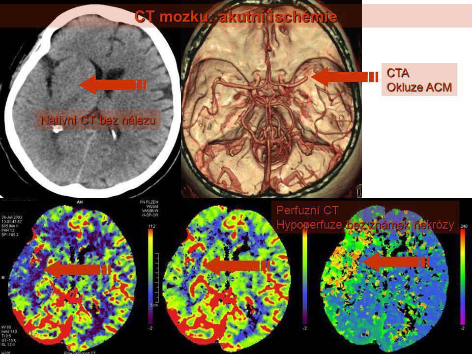 CT mozku: akutní ischémie Nativní CT bez nálezu CTA Okluze ACM Perfuzní CT Hypoperfuze bez známek nekrózy