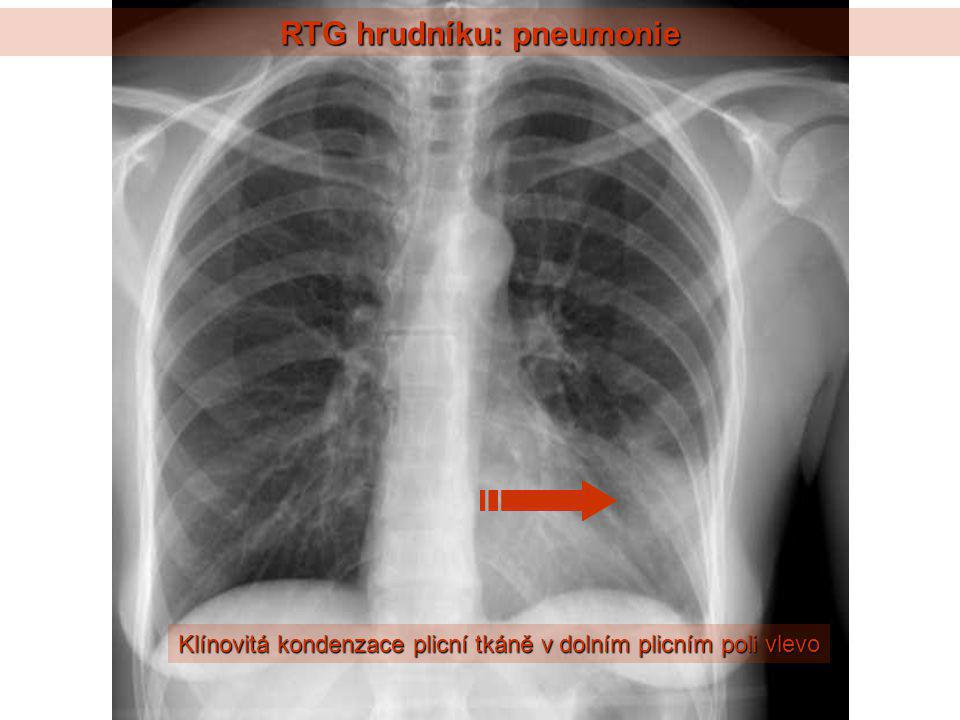 RTG hrudníku: levostranné selhávání, intersticiální edém Kerleyho linie Dilatace srdečního stínu Rozšíření plicních hilů