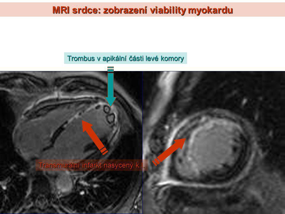 MRI srdce: zobrazení viability myokardu Trombus v apikální části levé komory Transmurální infarkt nasycený k.l.