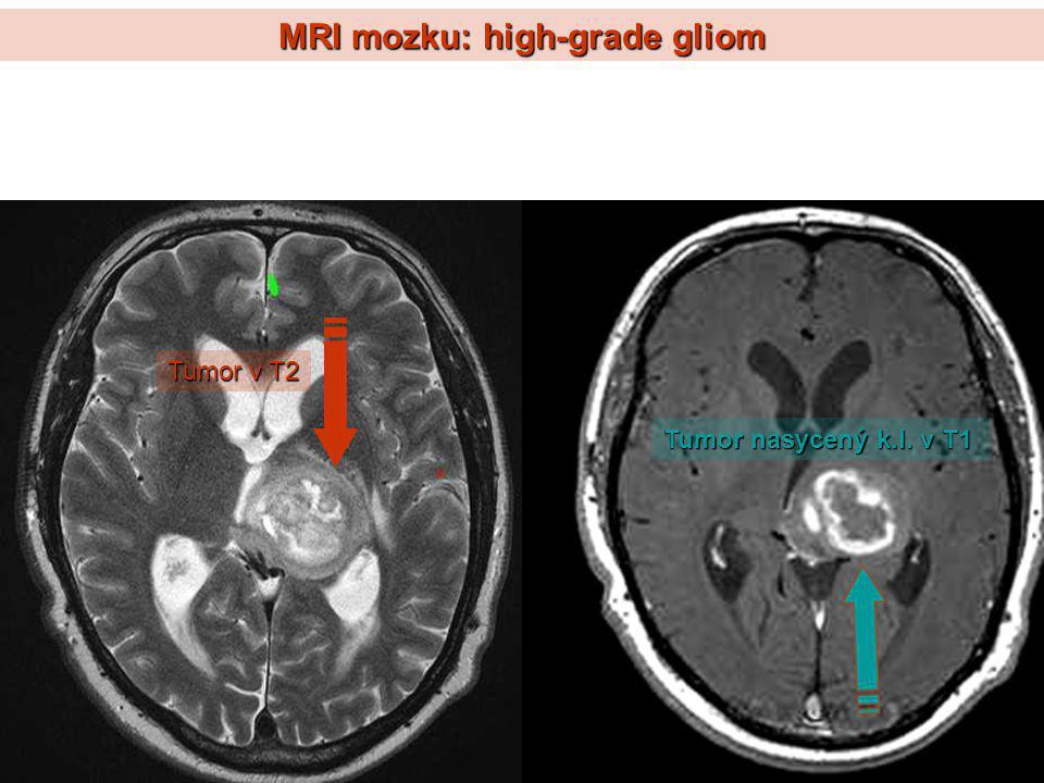 MRI mozku: high-grade gliom Tumor v T2 Tumor nasycený k.l. v T1