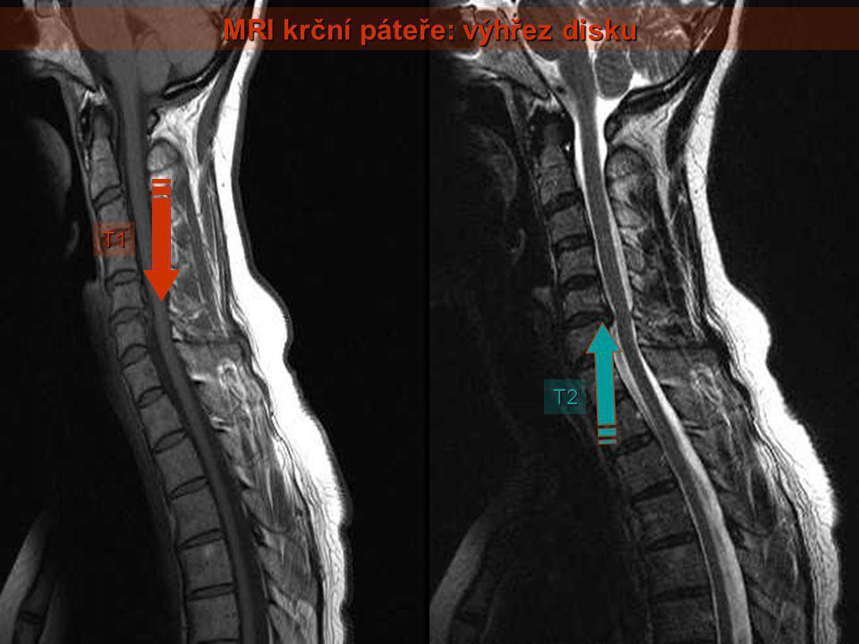 MRI krční páteře: výhřez disku T1 T2