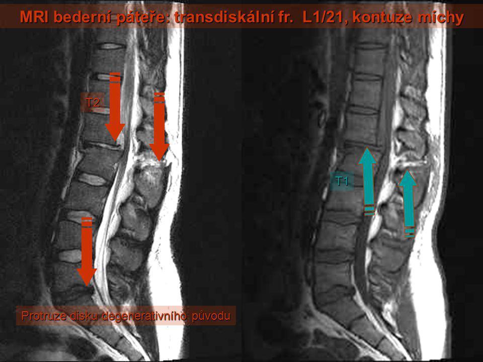 MRI bederní páteře: transdiskální fr. L1/21, kontuze míchy T2 T1 Protruze disku degenerativního původu
