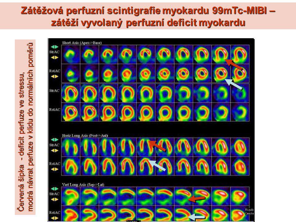 Zátěžová perfuzní scintigrafie myokardu 99mTc-MIBI – zátěží vyvolaný perfuzní deficit myokardu Červená šipka - deficit perfuze ve stressu, modrá návra