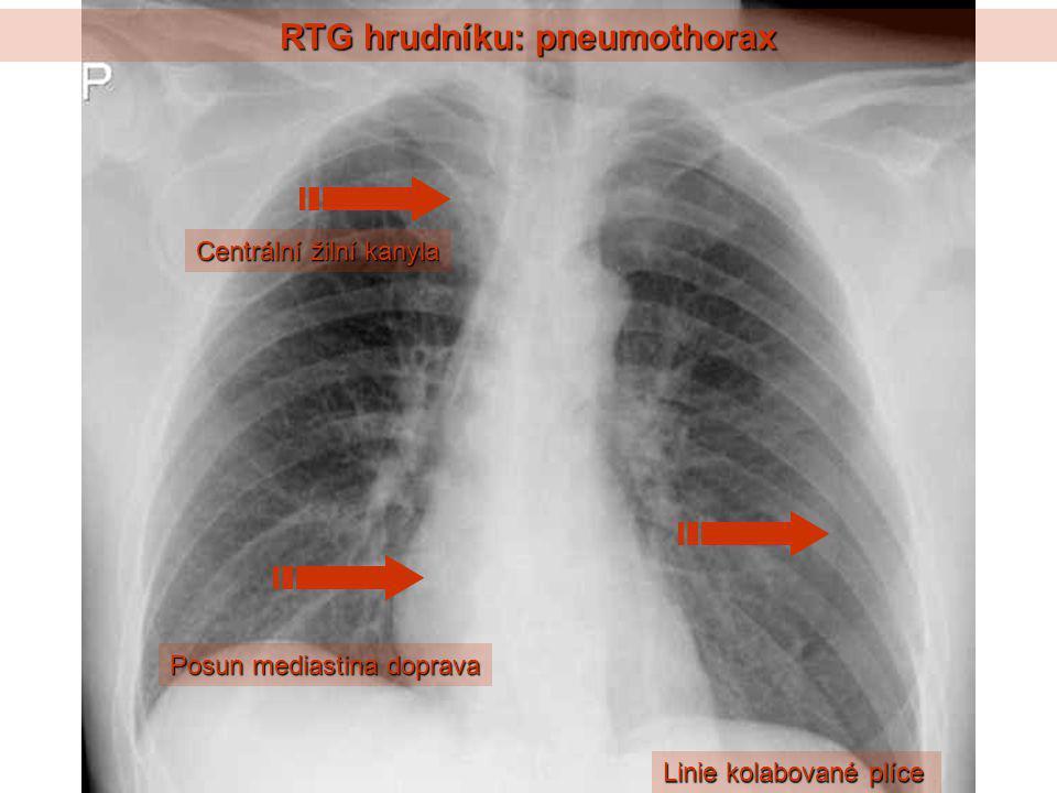 RTG hrudníku: pneumothorax Linie kolabované plíce Centrální žilní kanyla Posun mediastina doprava