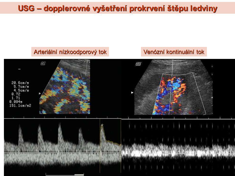 USG – dopplerovné vyšetření prokrvení štěpu ledviny Arteriální nízkoodporový tok Venózní kontinuální tok