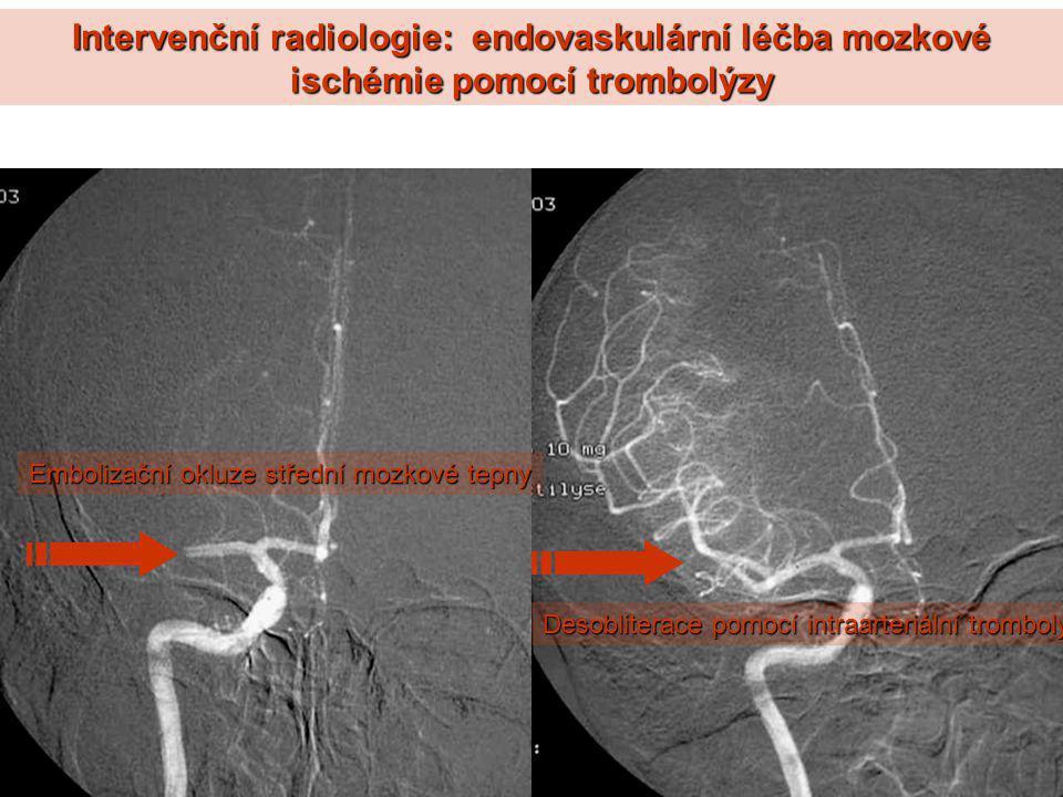 Intervenční radiologie: endovaskulární léčba mozkové ischémie pomocí trombolýzy Desobliterace pomocí intraarteriální trombolýzy Embolizační okluze stř