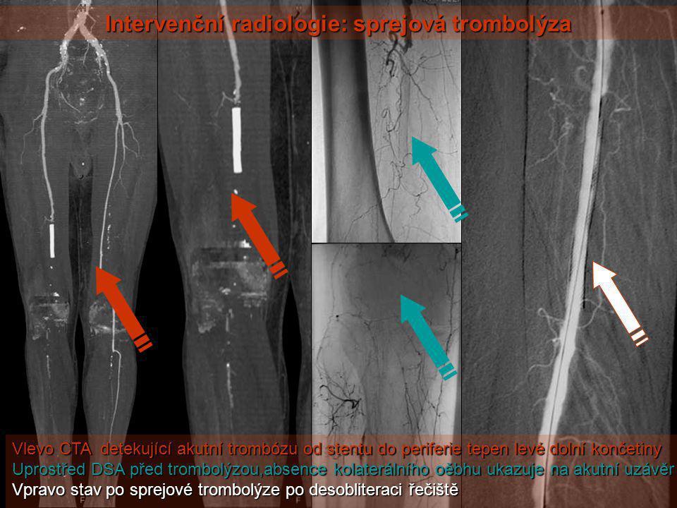 Intervenční radiologie: sprejová trombolýza Vlevo CTA detekující akutní trombózu od stentu do periferie tepen levé dolní končetiny Uprostřed DSA před