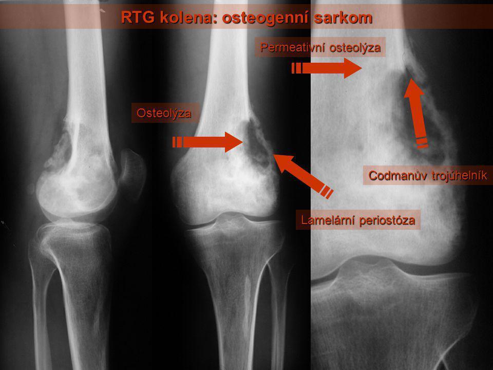 RTG kolena: osteogenní sarkom Osteolýza Lamelární periostóza Permeativní osteolýza Codmanův trojúhelník