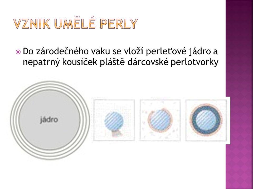  Do zárodečného vaku se vloží perleťové jádro a nepatrný kousíček pláště dárcovské perlotvorky