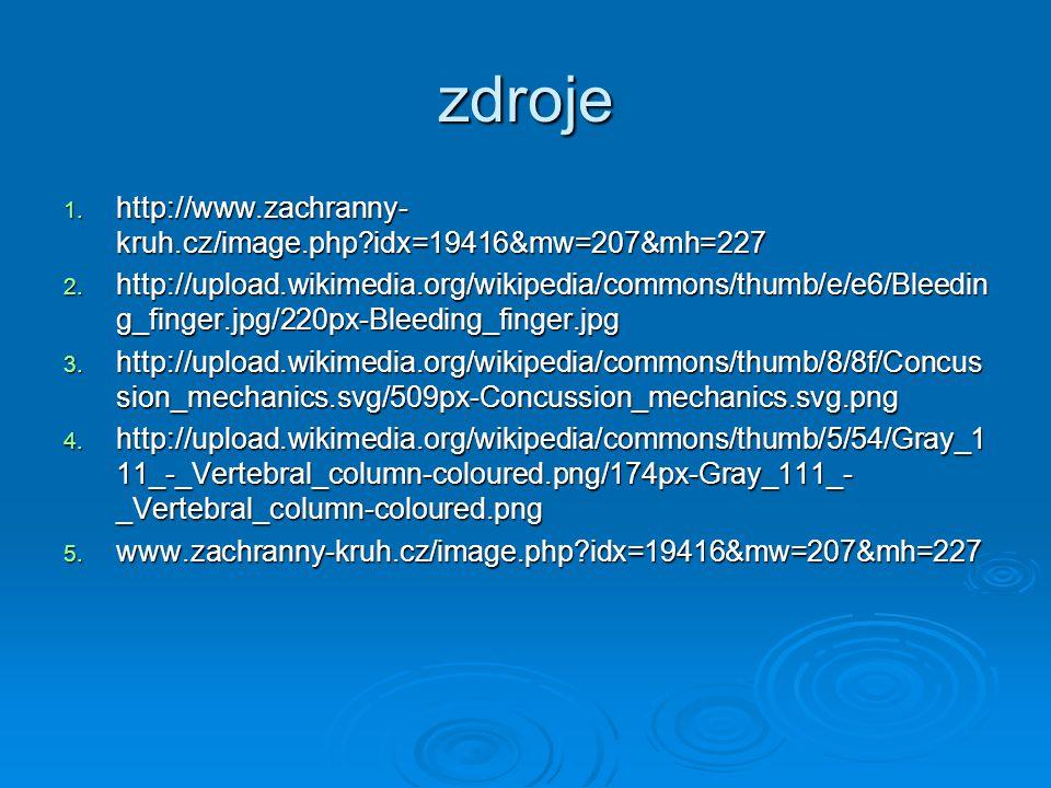 zdroje 1. http://www.zachranny- kruh.cz/image.php?idx=19416&mw=207&mh=227 2. http://upload.wikimedia.org/wikipedia/commons/thumb/e/e6/Bleedin g_finger