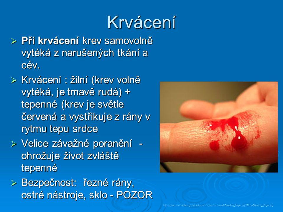 Krvácení  Při krvácení krev samovolně vytéká z narušených tkání a cév.  Krvácení : žilní (krev volně vytéká, je tmavě rudá) + tepenné (krev je světl
