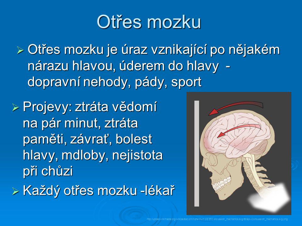 Otřes mozku  Otřes mozku je úraz vznikající po nějakém nárazu hlavou, úderem do hlavy - dopravní nehody, pády, sport  Projevy: ztráta vědomí na pár