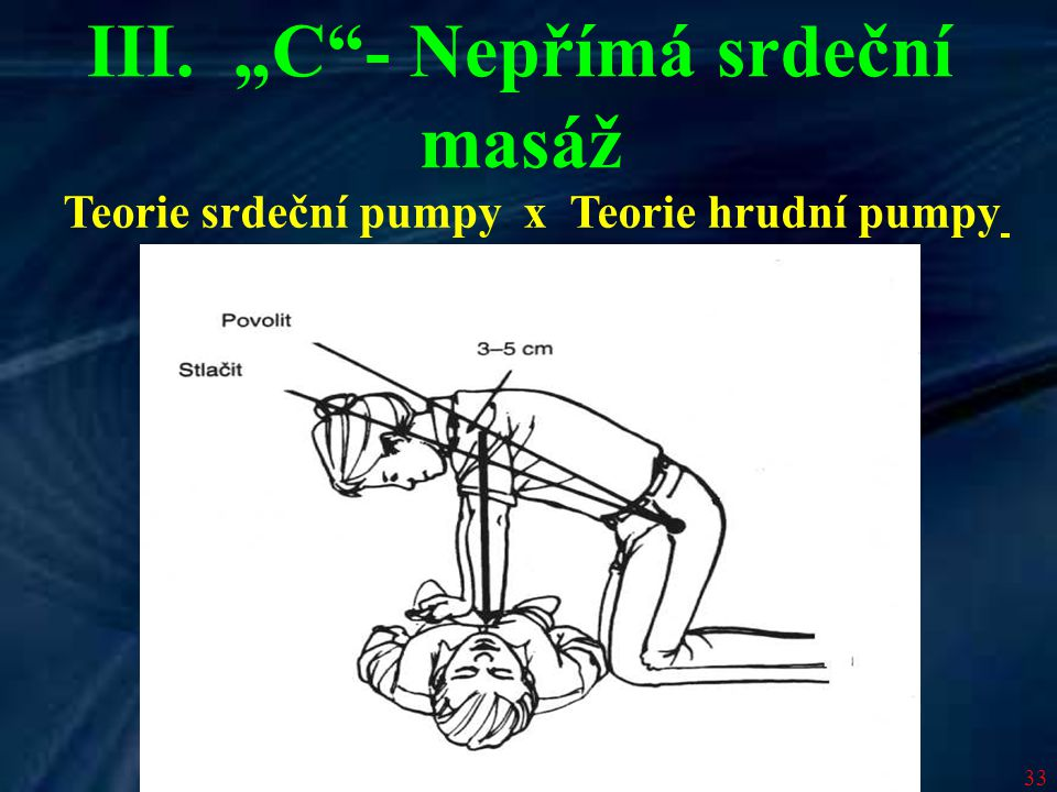 """33 Teorie srdeční pumpy x Teorie hrudní pumpy III. """"C""""- Nepřímá srdeční masáž"""