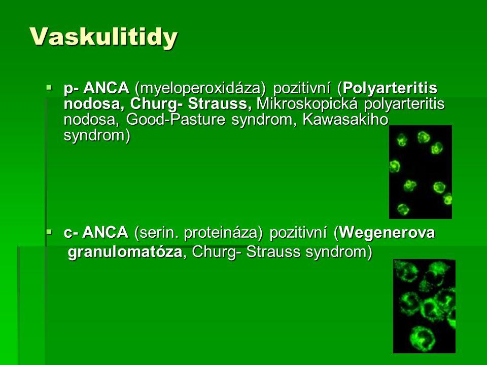 Vaskulitidy  p- ANCA (myeloperoxidáza) pozitivní (Polyarteritis nodosa, Churg- Strauss, Mikroskopická polyarteritis nodosa, Good-Pasture syndrom, Kaw