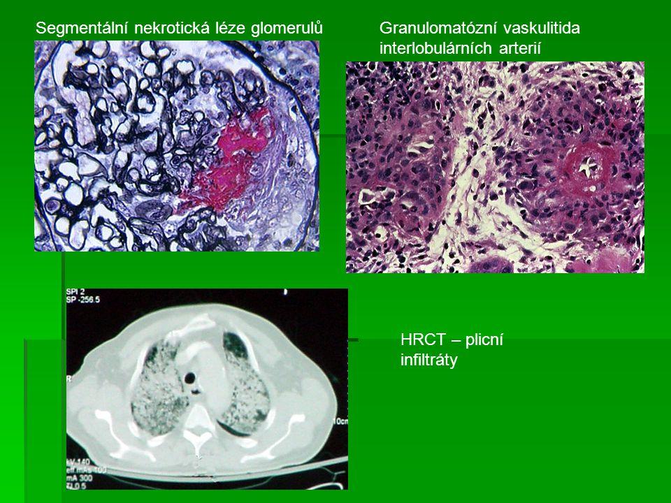 Segmentální nekrotická léze glomerulůGranulomatózní vaskulitida interlobulárních arterií HRCT – plicní infiltráty