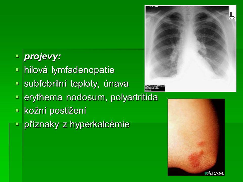  projevy:  hilová lymfadenopatie  subfebrilní teploty, únava  erythema nodosum, polyartritida  kožní postižení  příznaky z hyperkalcémie