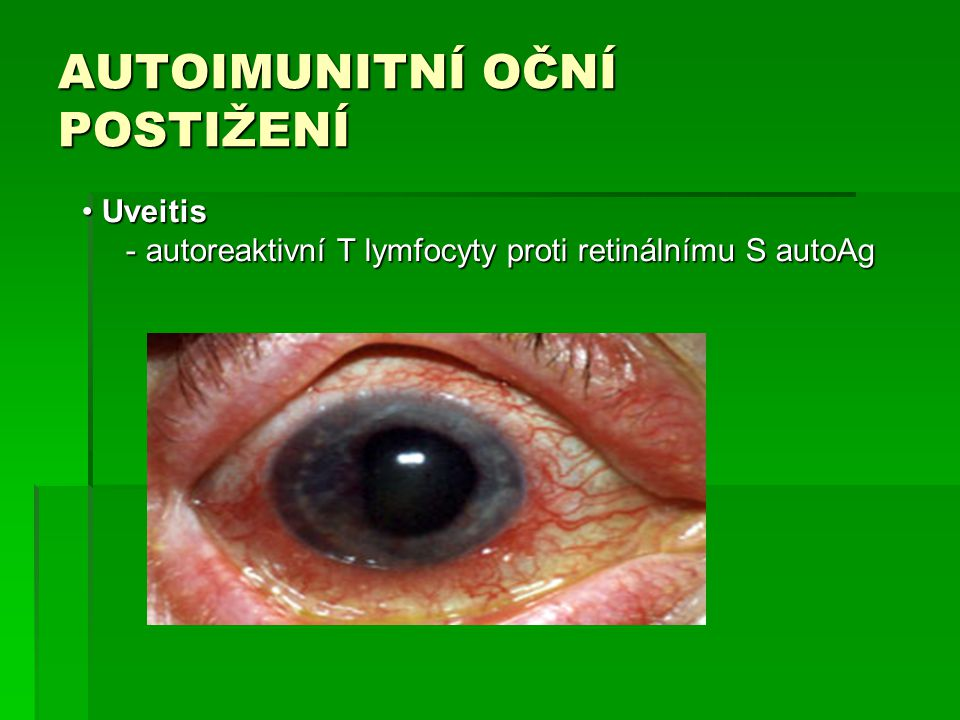 AUTOIMUNITNÍ OČNÍ POSTIŽENÍ Uveitis Uveitis - autoreaktivní T lymfocyty proti retinálnímu S autoAg - autoreaktivní T lymfocyty proti retinálnímu S aut