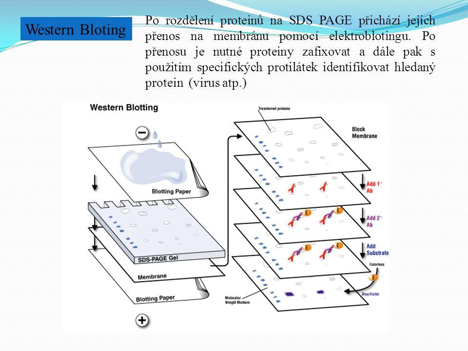 Western Bloting Po rozdělení proteinů na SDS PAGE přichází jejich přenos na membránu pomocí elektroblotingu. Po přenosu je nutné proteiny zafixovat a