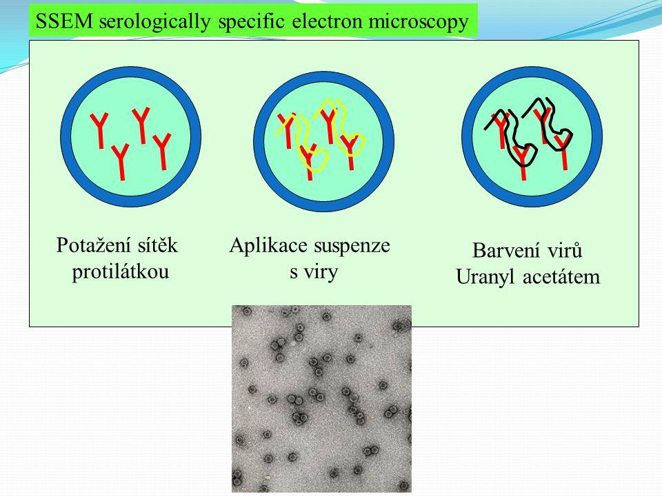 SSEM serologically specific electron microscopy Potažení sítěk protilátkou Aplikace suspenze s viry Barvení virů Uranyl acetátem